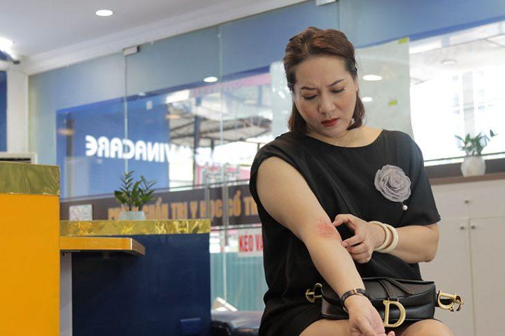 Cứ mỗi khi mặc áo ngắn tay, nghệ sĩ Thu Huyền đều cảm thấy tự ti vì viêm da cơ địa cộm lên rất xấu xí