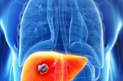 Ung thư đại tràng dễ di căn lên gan