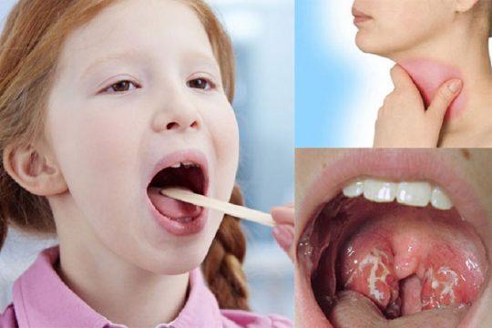 Viêm họng là tình trạng thường gặp ở trẻ