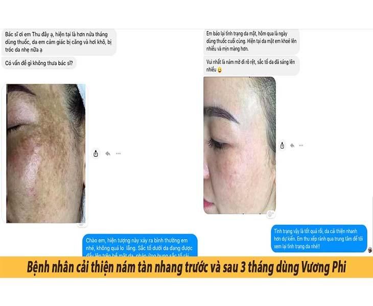 Bệnh nhân cải thiện tình trạng da trước và sau 3 tháng dùng Vương Phi