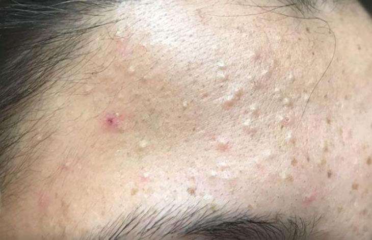 Da mặt sần sùi nhiều mụn ẩn là do đâu?