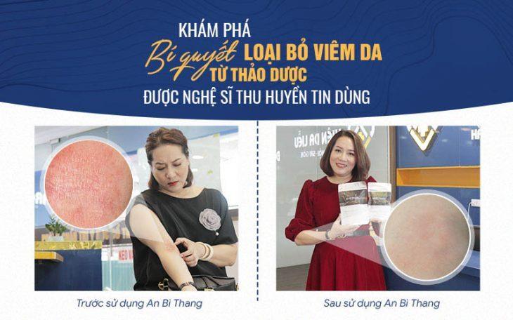 Bài thuốc An Bì Thang chữa viêm da cơ địa đã mang lại sự hài lòng cho nghệ sĩ Thu Huyền