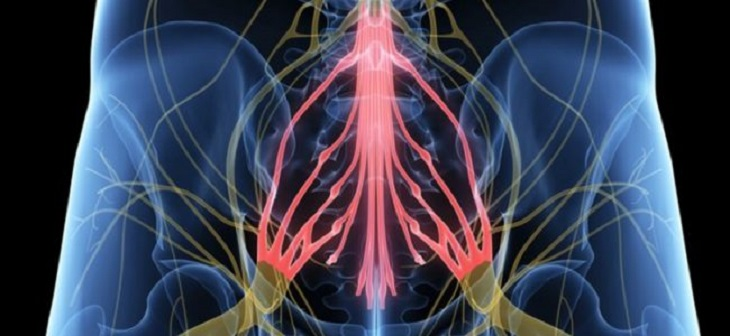 Hội chứng chùm đuôi ngựa có thể khiến người bệnh đau nhức lưng dữ dội