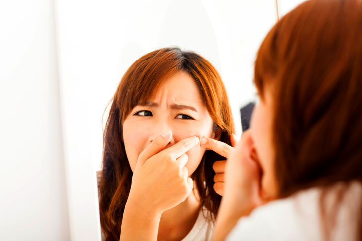 Hạn chế nặn mụn để tránh gây viêm nhiễm cho da