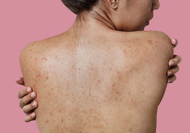 Mụn ẩn ở lưng có thể là dấu hiệu của nhiều bệnh lý trong cơ thể