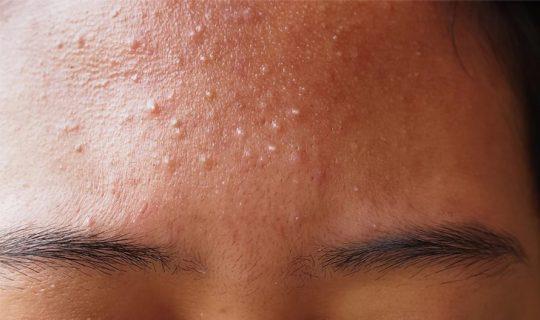 Nguyên nhân hình thành mụn li ti dưới da