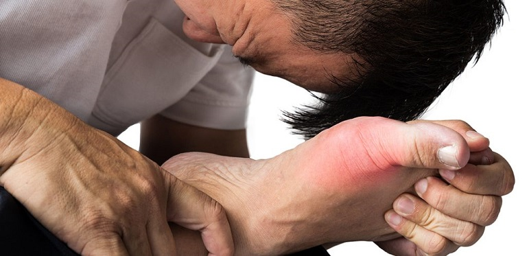 Gout gây đau đớn dữ dội về đêm