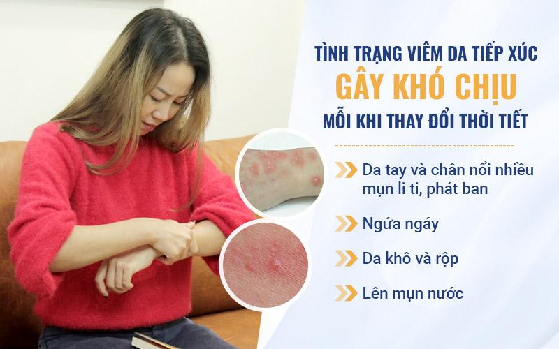 Nữ diễn viên Vân Anh đã mắc viêm da tiếp xúc hơn 20 năm