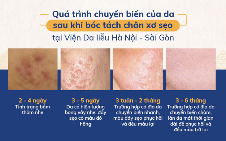 Quá trình chuyển biến của da sau khi bóc tách đáy sẹo tại Viện Da liễu Hà Nội - Sài Gòn