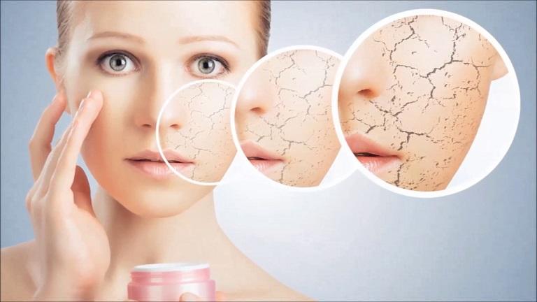 Da thiếu ẩm có thể gây khởi phát tình trạng dị ứng