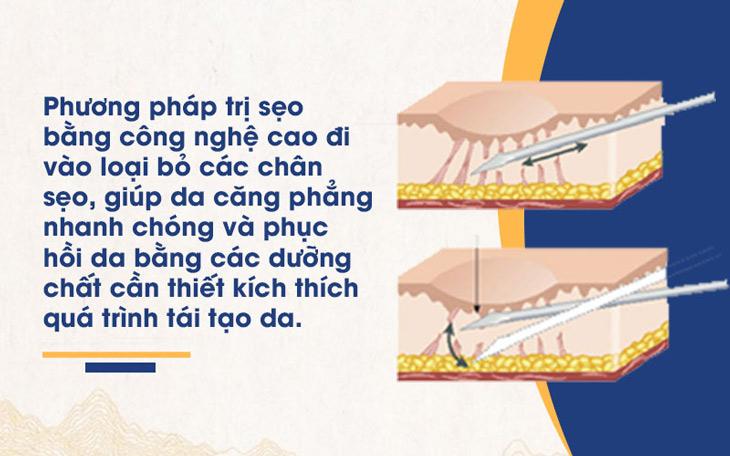 Nguyên lý hoạt động của công nghệ bóc tách đáy sẹo tại Viện Da liễu Hà Nội - Sài Gòn