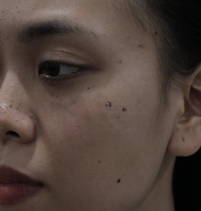 Làn da sần sùi, kém sắc do mụn ẩn, mụn đầu đen của chị Trang