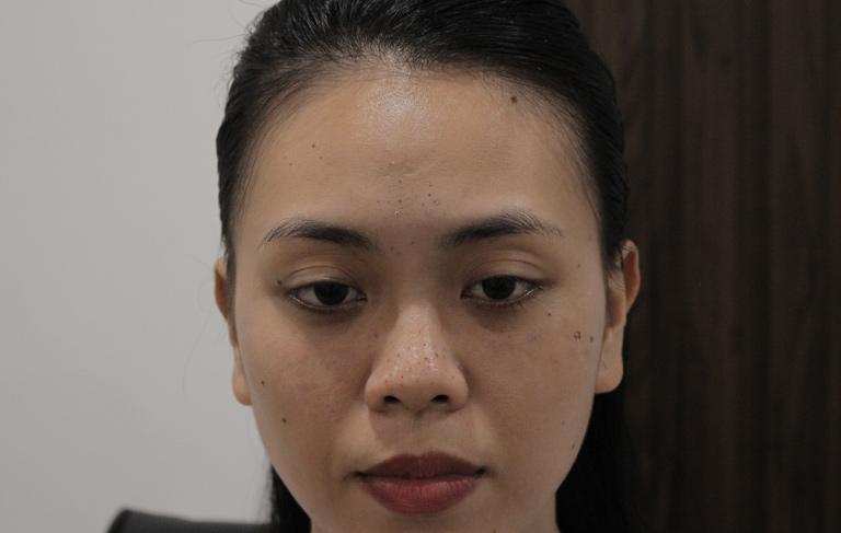 Tình trạng mụn trên da không thuyên giảm dù chị Trang đã tiến hành điều trị khá cẩn thận