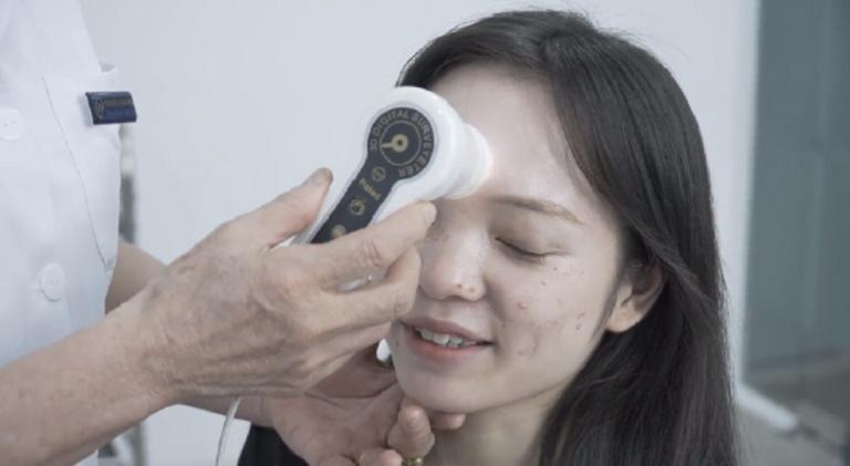 Do Linh điều trị mụn không đúng cách kiến tình trạng mụn trên da mặt ngày càng nặng hơn