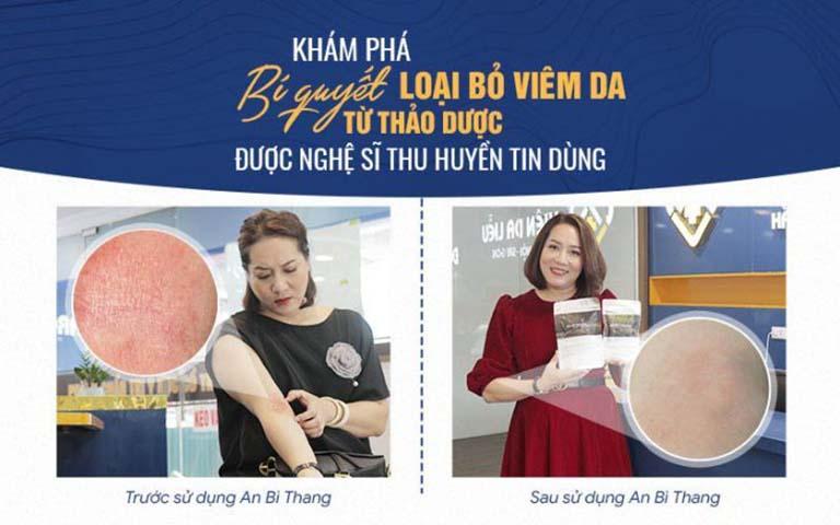 Nghệ sĩ Thu Huyền vượt qua viêm da mãn tính lâu năm nhờ bài thuốc An Bì Thang