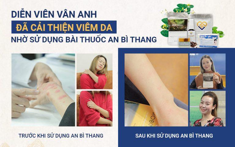 Post AnBiThang 210305 07 2 e1630388212720