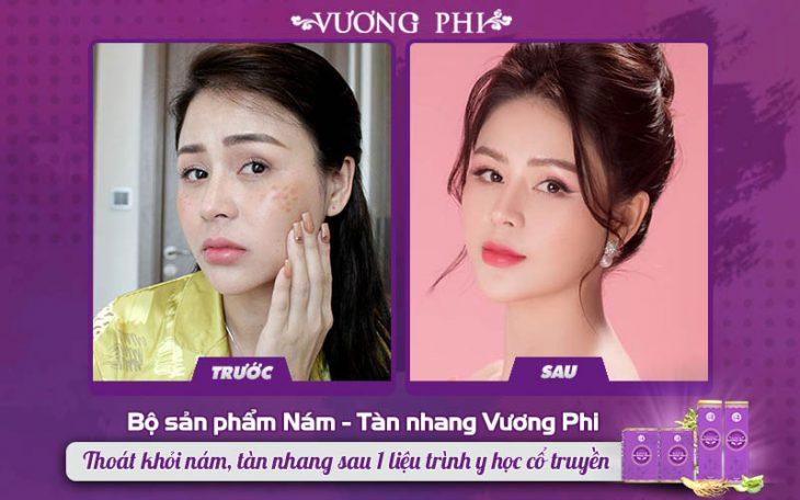 Bộ sản phẩm Nám Tàn nhang Vương Phi được nhiều người nổi tiếng tin dùng như nữ Diễn viên Lương Thu Trang…